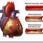 Hindari Jantung Koroner dengan Aerobik